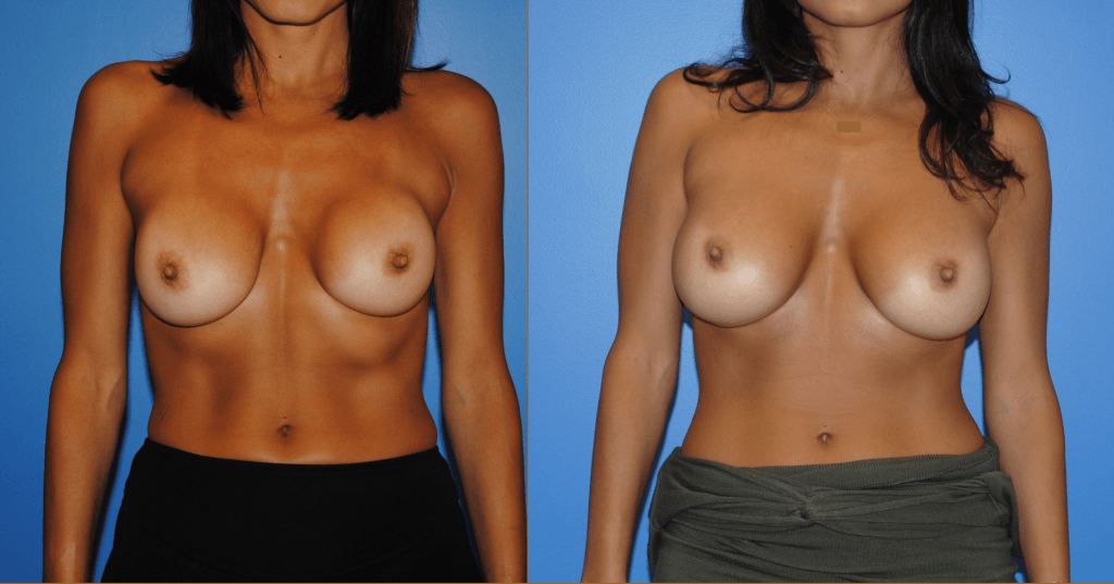 Capsular Contracture Revision Augmentation