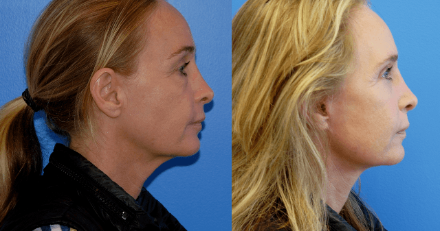Lower Face Necklift Orange County