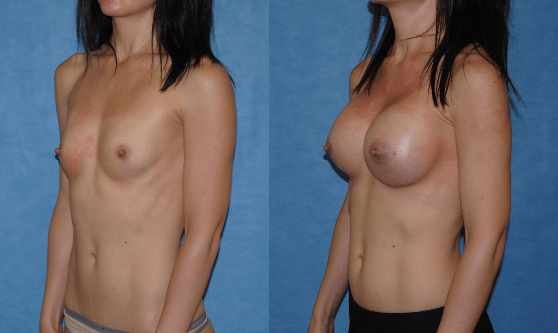 Orange County Breast Augmentation Three Quarter Before & After