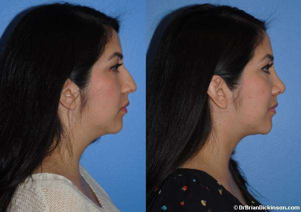 Dorsal Hump Before and After