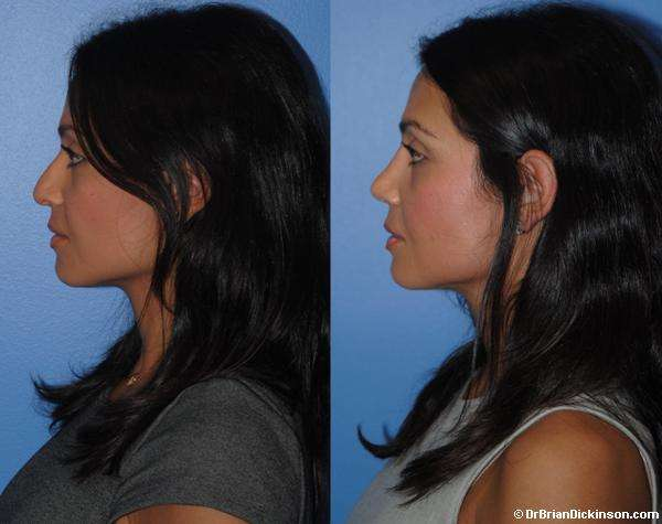 Female Middle Eastern Primary Rhinoplasty Newport Beach