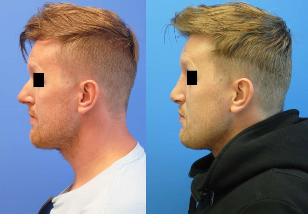 Radix Graft Tip Deprojection Rhinoplasty