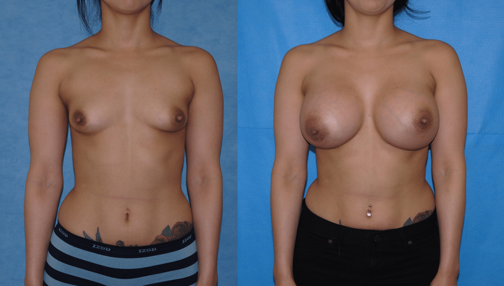 Tuberous Breast Deformity-OC-Costa Mesa-Dickinson