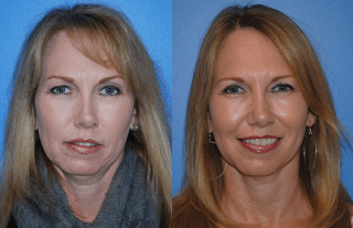 Upper Blepharoplasty Surgery