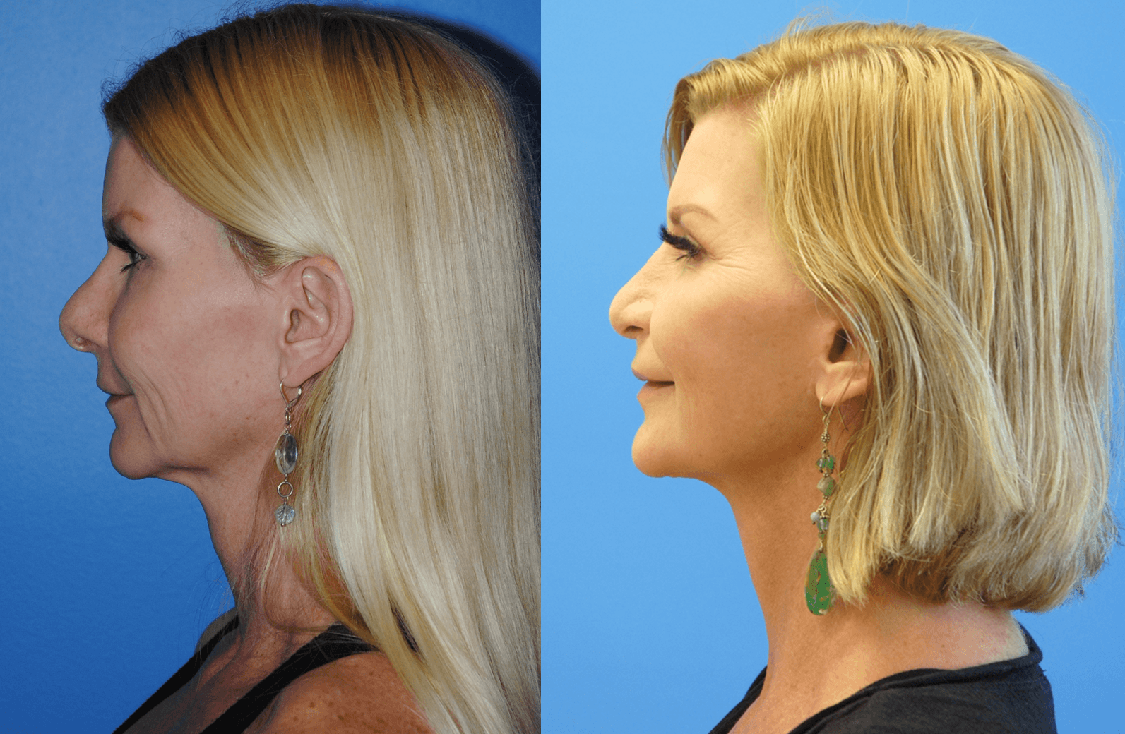 Facelift Orange County
