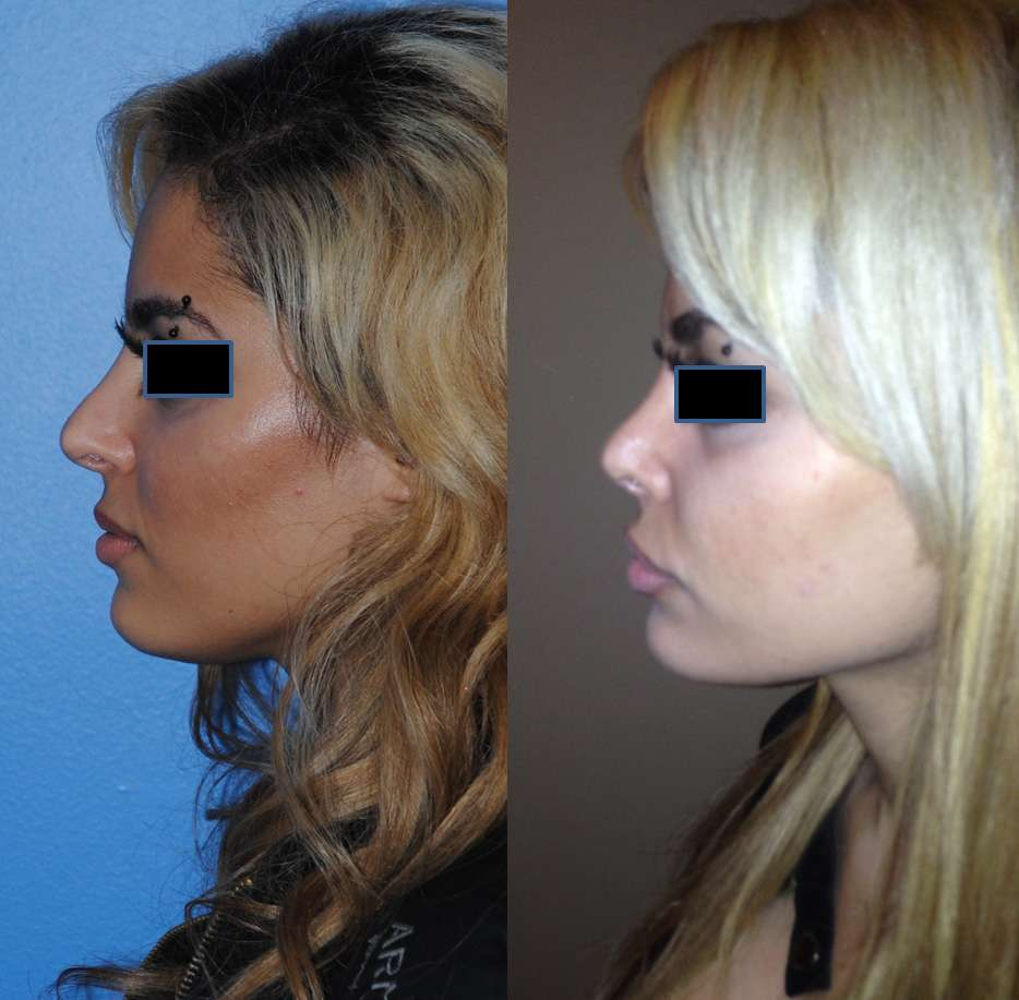 Middle Eastern Rhinoplasty Revision in Newport Beach
