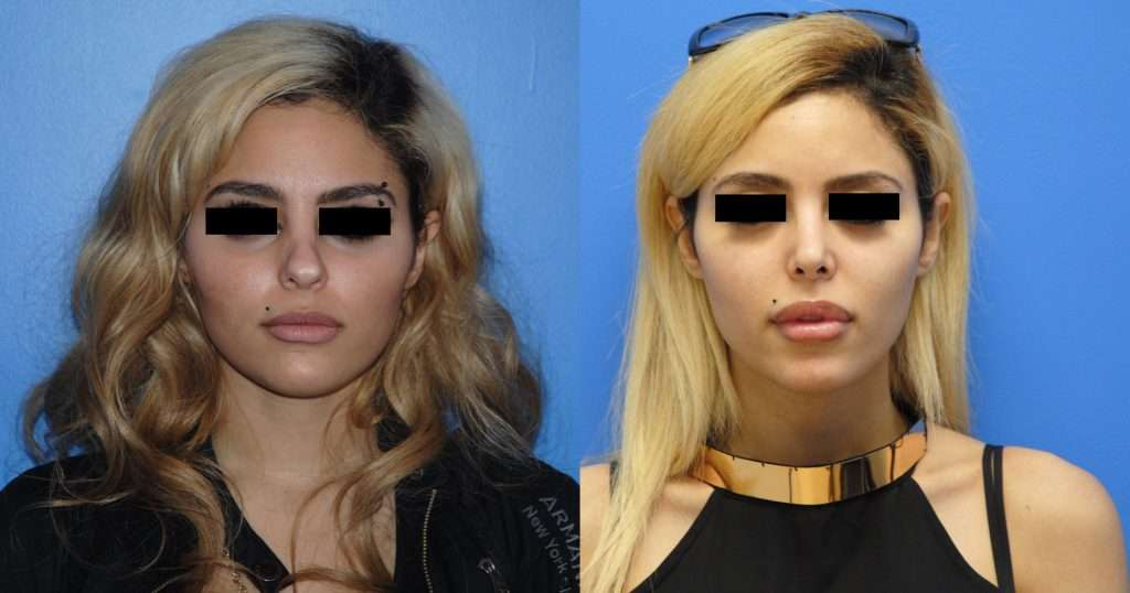 Middle Eastern Secondary Rhinoplasty Before and After Photos