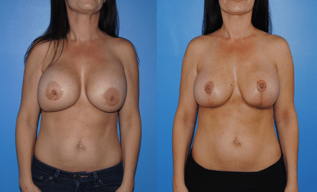 Removal-Replacment-Mastopexy - Brian Dickinson, M.D.