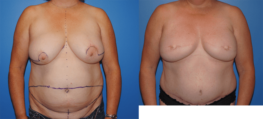 Autologous Breast Reconstruction