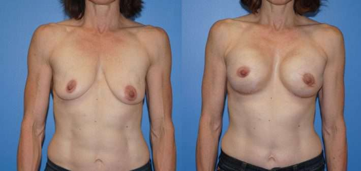 Breast Reconstruction Before and After images