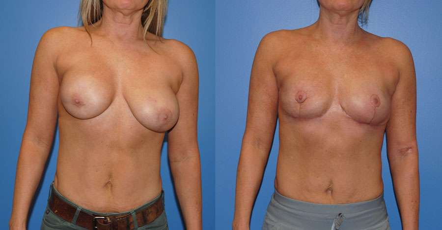 Breast Reconstruction following Lumpecomy & Radiation
