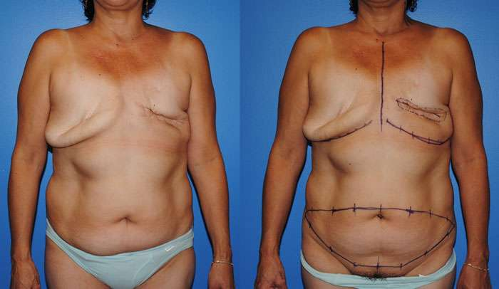 DIEP flap before and after