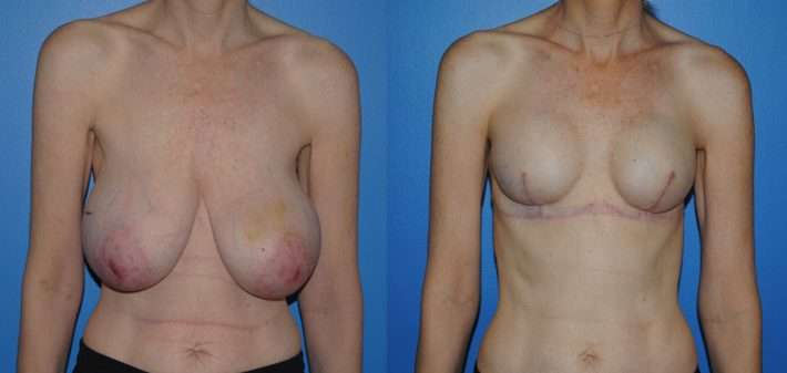 Breast reconstruction following mastectomy with tissue expander and implant reconstruction
