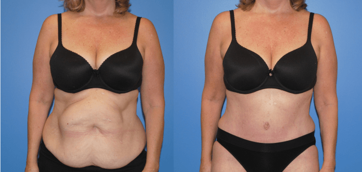 Component Separation and Abdominal Wall Reconstruction