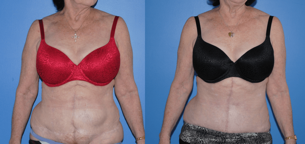 Abdominal Wall Reconstruction with Component Separation and Strattice