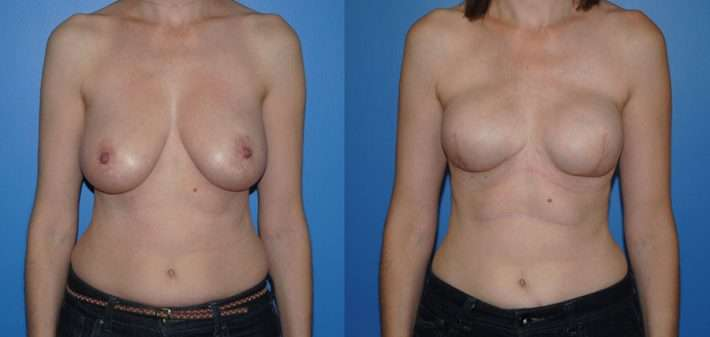 Implant breast reconstruction before and after following mastectomy
