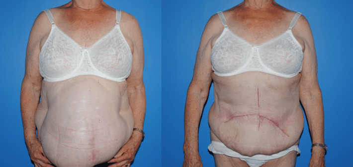 Hernia Repair with Component Separation and Strattice