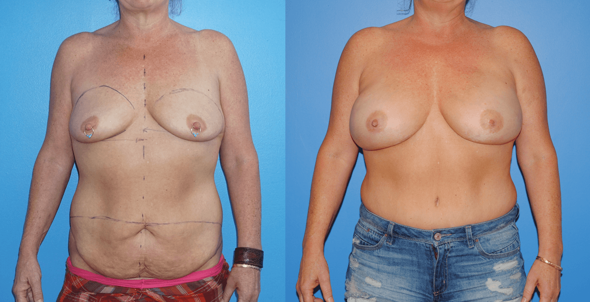 Displays DIEP Flap Reconstruction following bilateral mastectomy