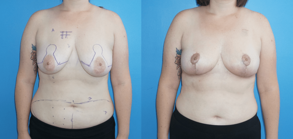 Oncoplastic Reconstruction following Lumpectomy and DIEP Flap Reconstruction Following Mastectomy