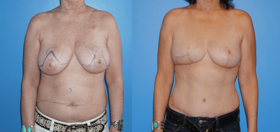 Displays Unilateral Breast DIEP Flap reconstruction and contralateral mastopexy