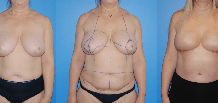 Bilateral DIEP Flap Breast Reconstruction
