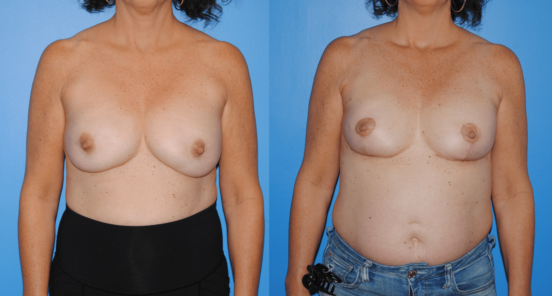 Mastectomy Reconstruction