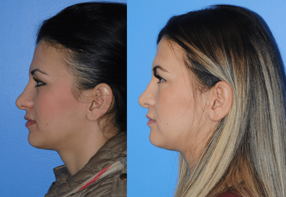 Rhinoplasty Profile