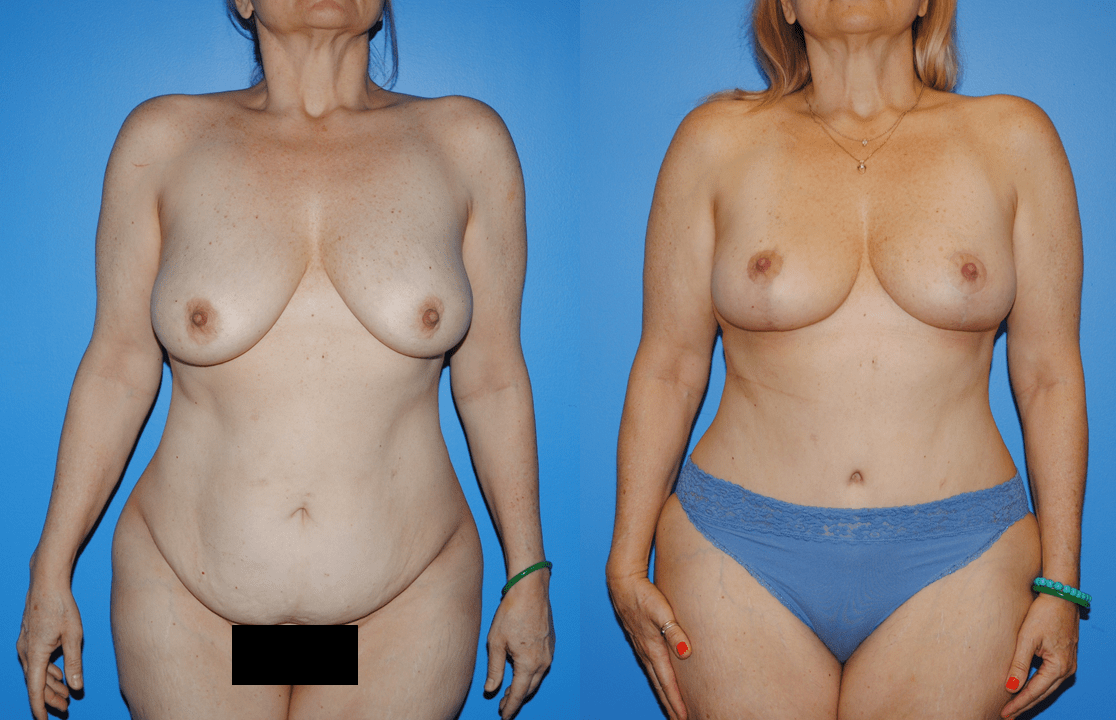 Abdominoplasty-Belly Button