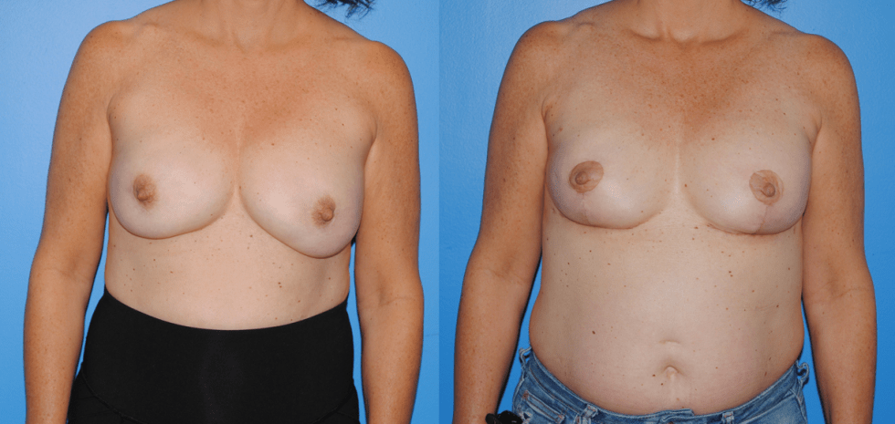 Bilateral Implant Breast Reconstruction