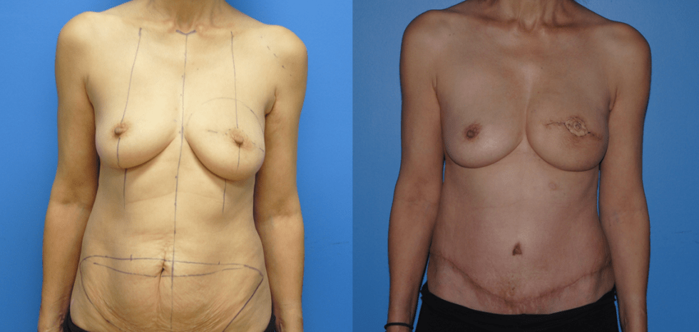 DIEP Flap post Mastectomy with previous Lumpectomy and Radiation