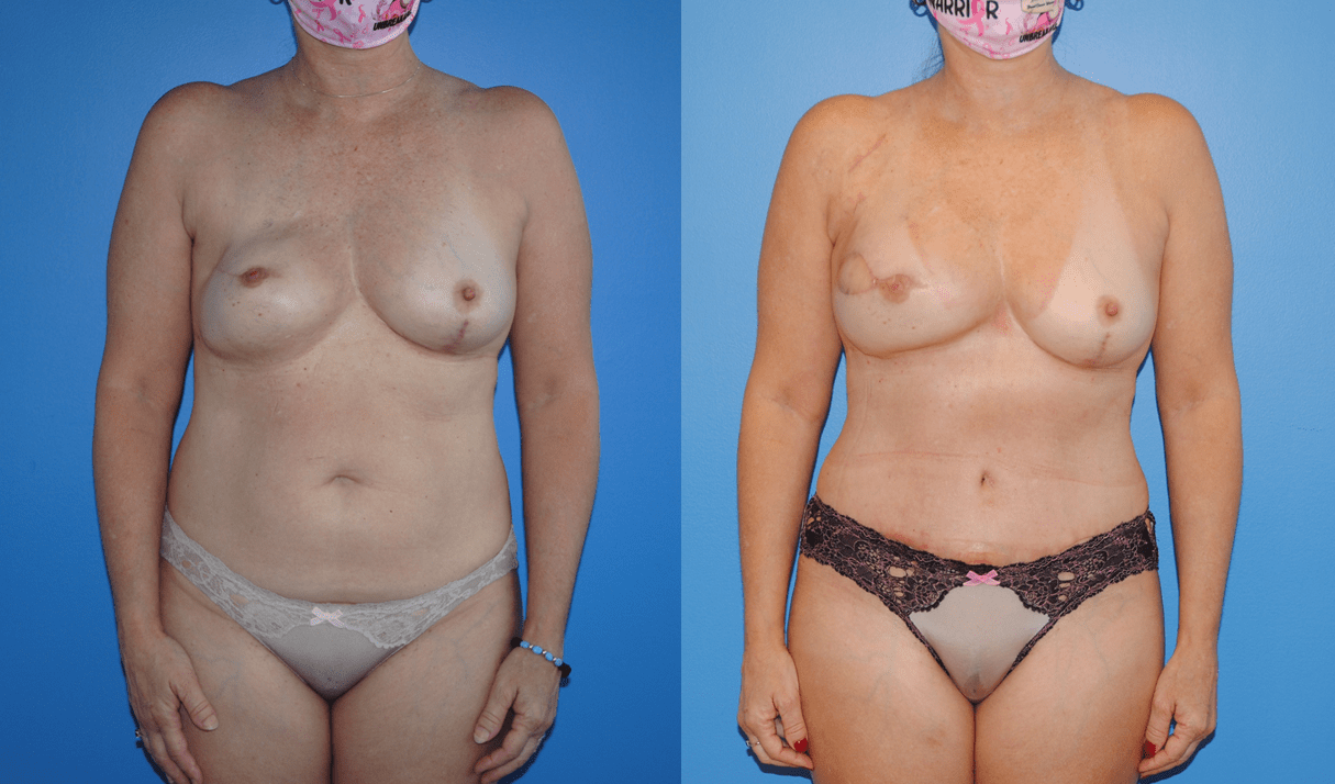 Unilateral DIEP Flap Breast Reconstruction