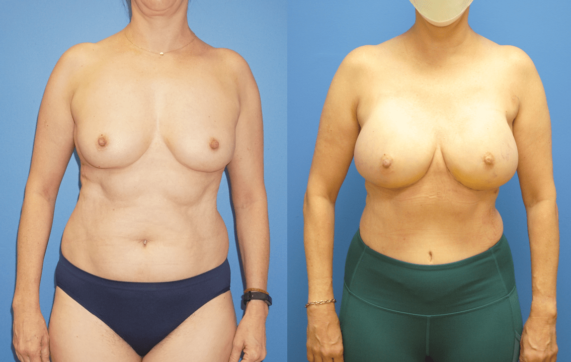 DIEP Flap Reconstruction and Mammary Prosthesis