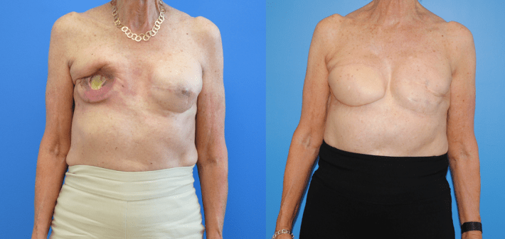 Breast Reconstruction Post Radiation