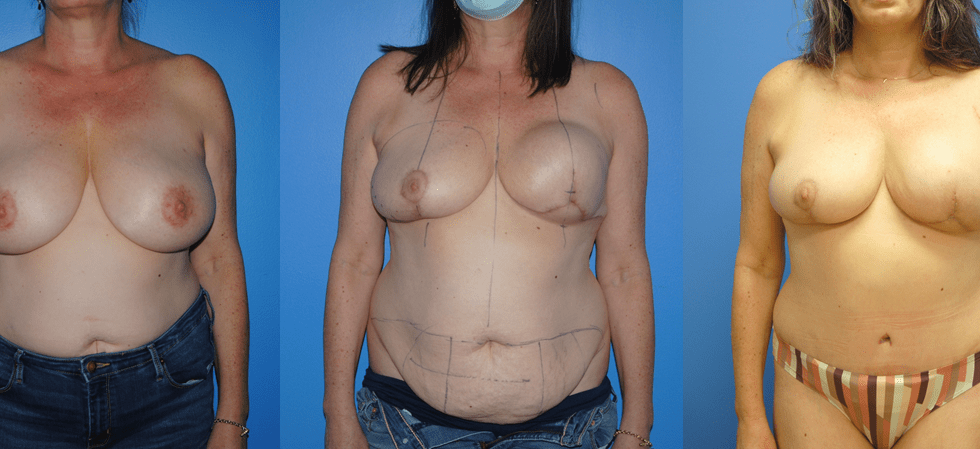 DIEP Flap Reconstruction Following Tissue Expander and Mastectomy