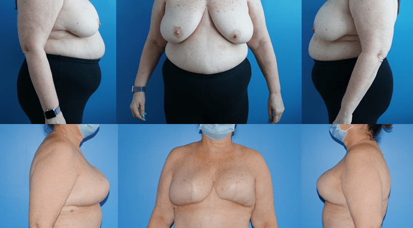 DIEP Flap Results and Weight Loss