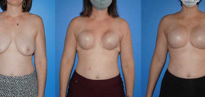 Tissue Expander-Breast Implant Reconstruction