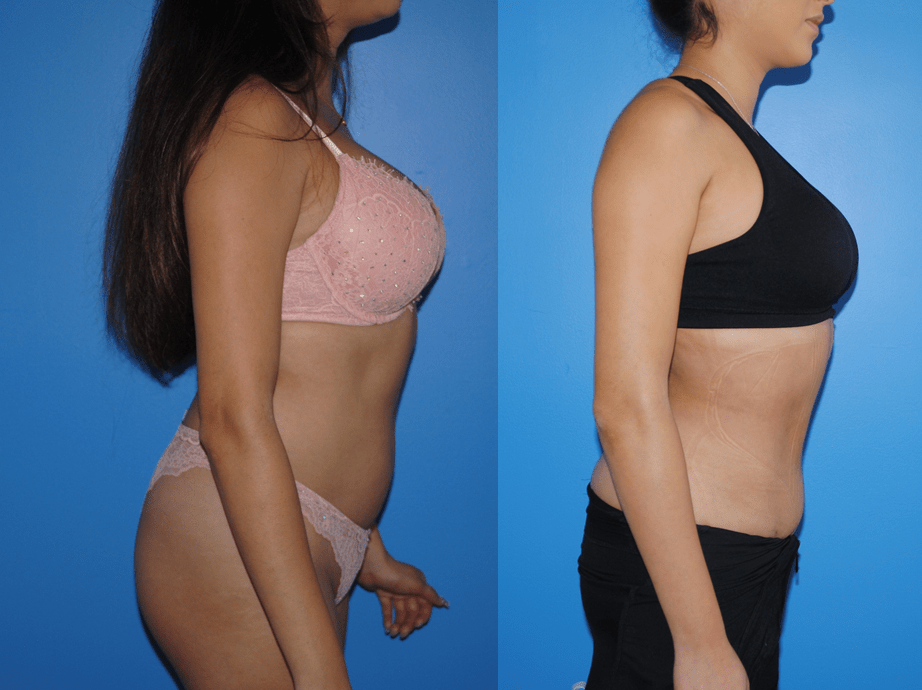 Gluteal Fat Transfer Profile