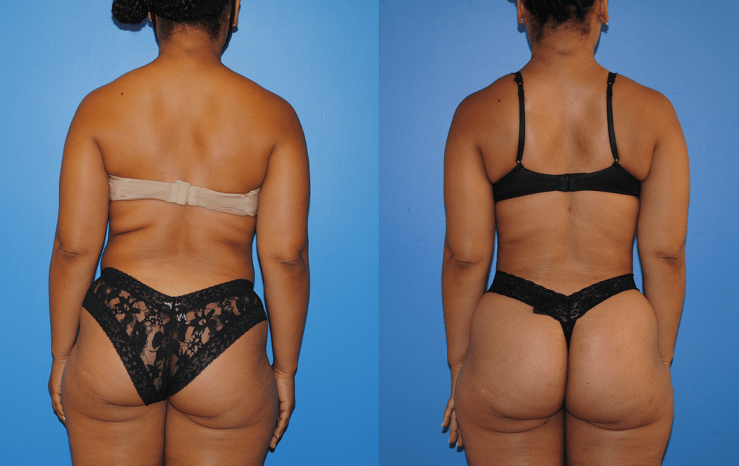 Liposuction of Back and Bra Fat