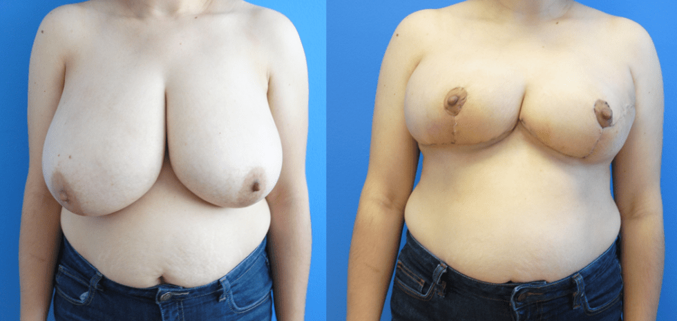 Oncoplastic Reconstruction of Lumpectomy Defects with Split Reduction