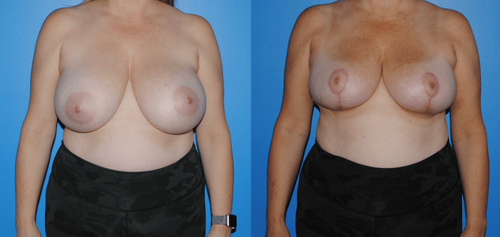 Oncoplastic Reconstruction of Lumpectomy Defect