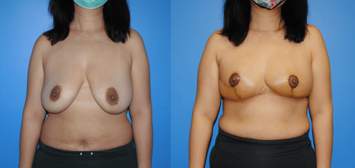 Oncoplastic Reconstruction of Lumpectomy Defects