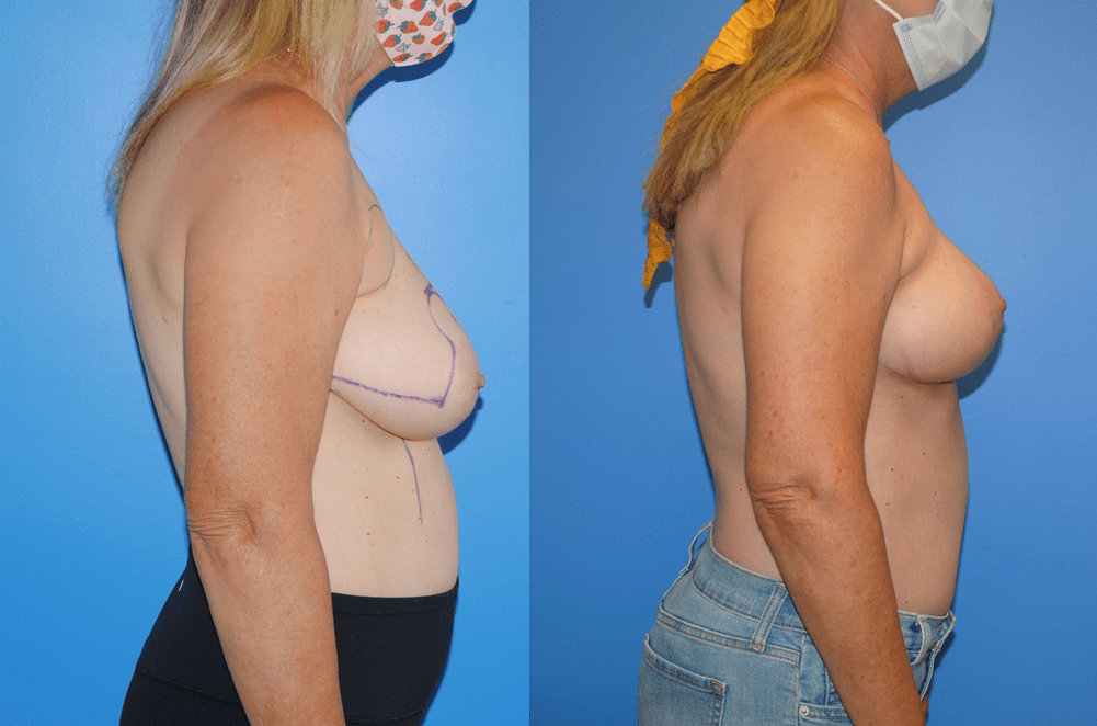 Oncoplastic Reconstruction, Breast Lift