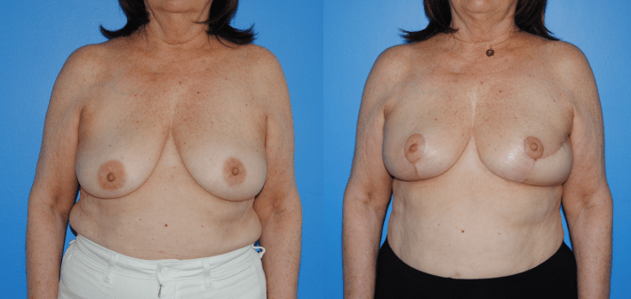 Oncoplastic Split Reduction of Lumpectomy Defects