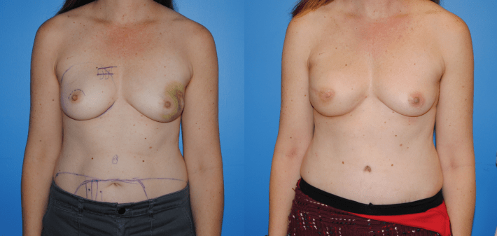 Unilateral DIEP Flap Breast Reconsruction