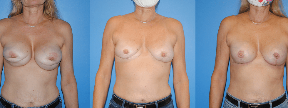 Bilateral Implant Removal and Replacement Staged Procedure with Mastopexy