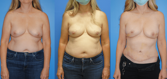 DIEP Flap Breast Reconstruction-Brian Dickinson, M.D.