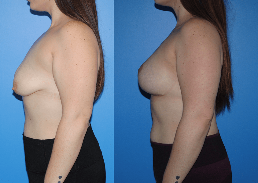 Mastopexy-Breast Lift-Profile
