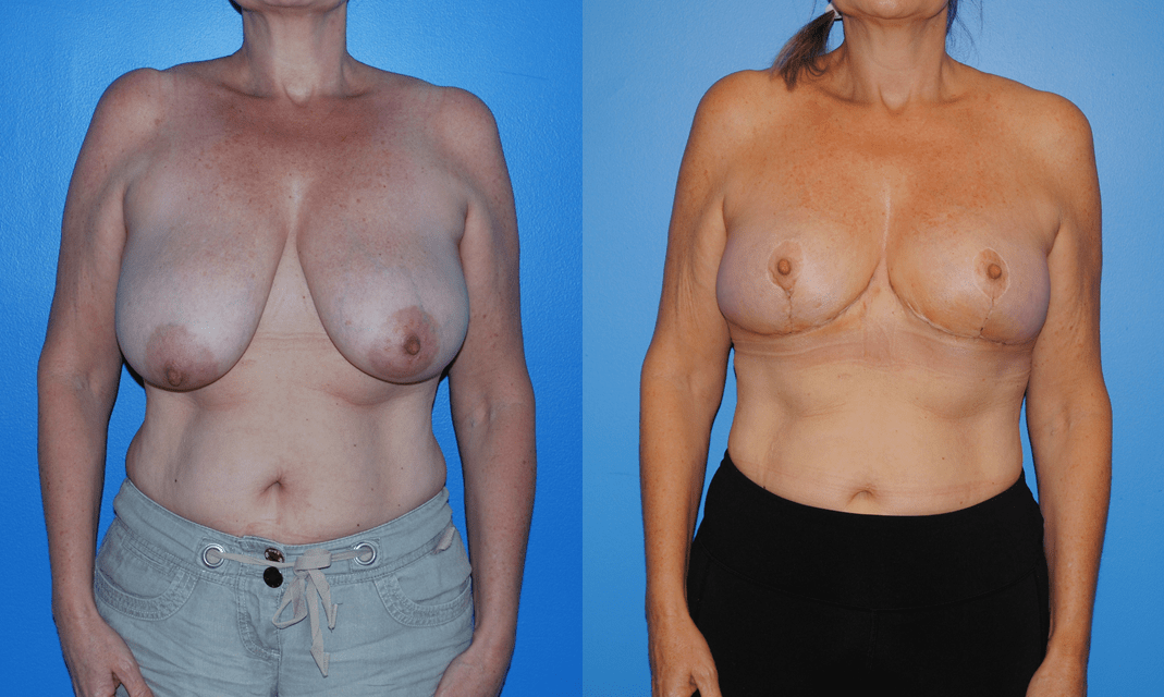 Breast Caner and Oncoplastic Reconstruction