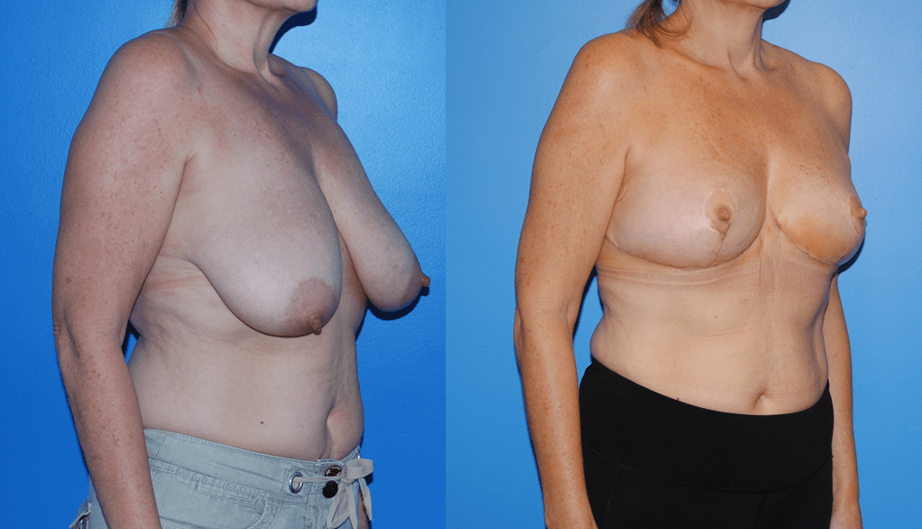 Oncoplastic Reconstruction of Lumpectomy Defect, Newport Beach