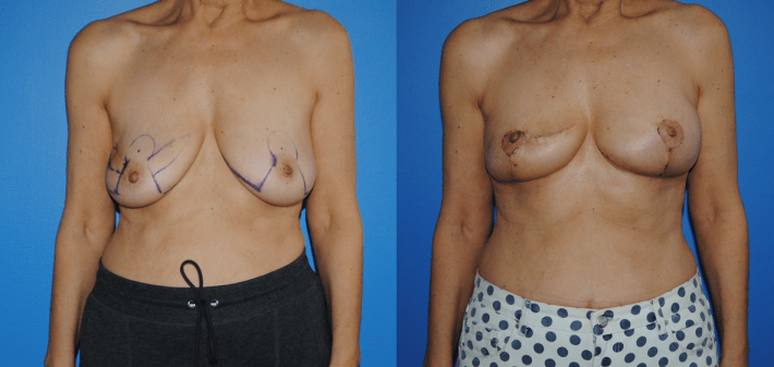 Split Oncoplastic Reconstruction of Lumpectomy Defects